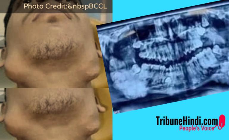 इस व्यक्ति के जबड़े से निकाले गये 82 दांत